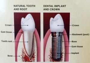 implant diagram