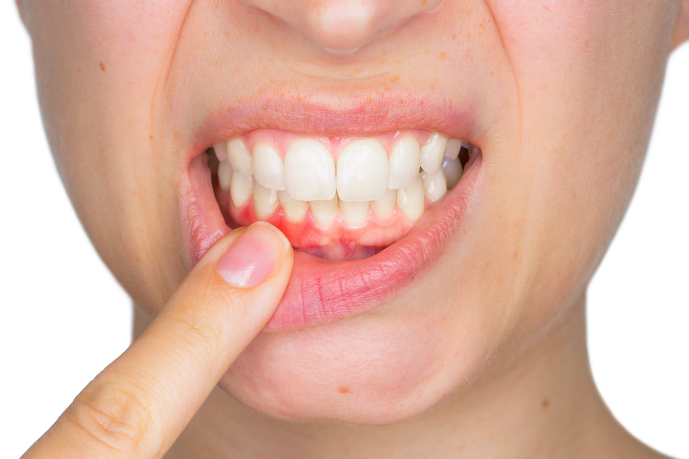 woman pointing to gums