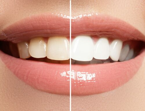 Teeth Whitening 101: Everything You Need to Know About Making Your Smile Shine